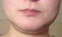 ブルドッグ顔の写真