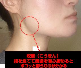 咬筋の位置を説明する写真