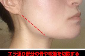 骨切り・咬筋切除でエラ張りを解消する場合の説明図